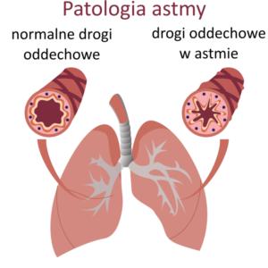 sposob-na-astme-butejko-pl